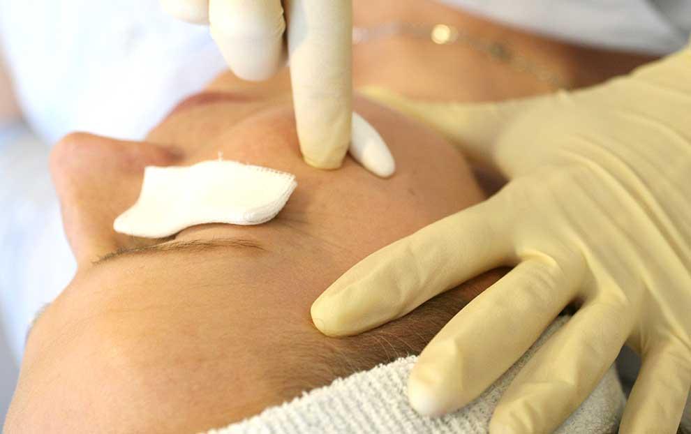 Trichloressigsäure Peeling